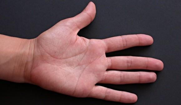 Médico japonés asegura cambiar suerte operando líneas de la mano