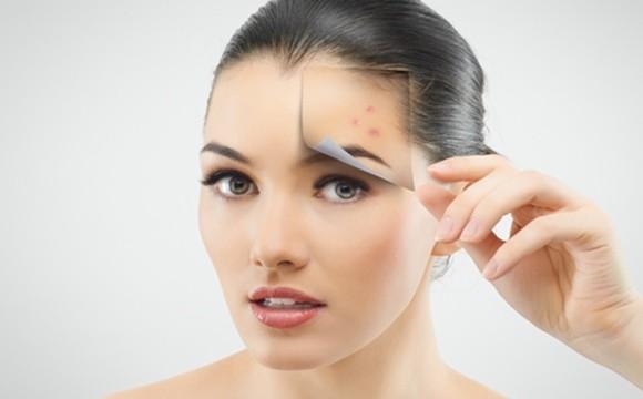 La vitamina E elimina las marcas de acné