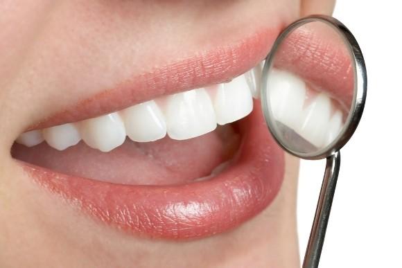 Blancorexia: obsesión por los dientes blancos