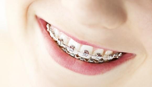 Cuidados importantes durante la ortodoncia