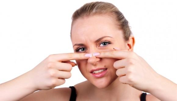 Elimina los puntos negros de tu rostro con vaselina