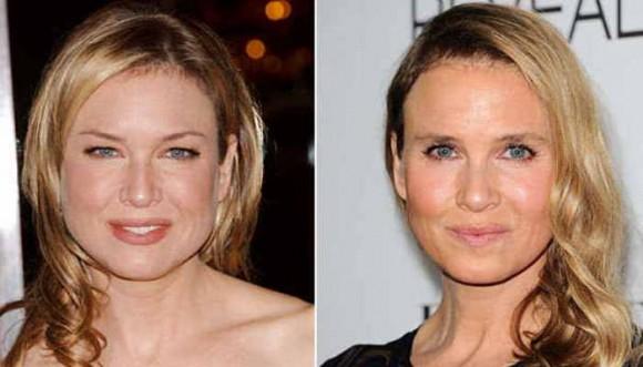 ¿Te gusta cómo quedó Renée Zellweger tras la cirugía plástica?