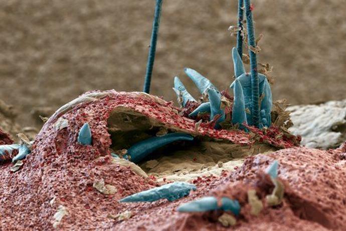 ácaros en la piel