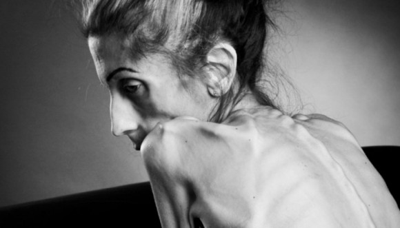 Mujer más flaca del mundo está al borde de la muerte