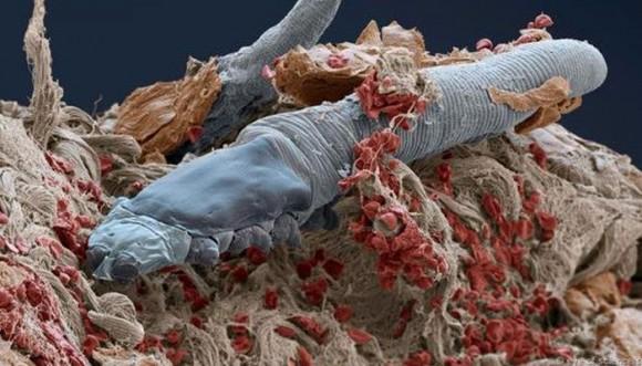 Impresionantes fotos de bichos que viven en tu rostro