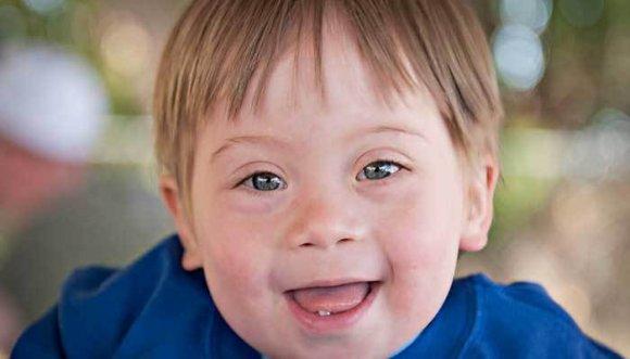 Esta respuesta sobre el Síndrome de Down te hará llorar (Video)