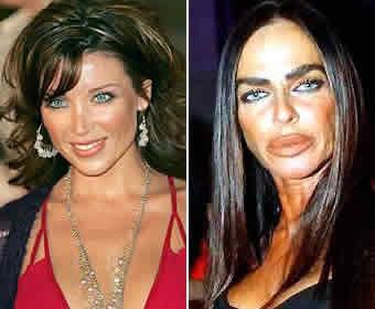 BotoxFails 02