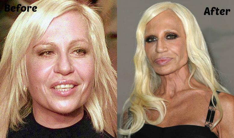 BotoxFails 04