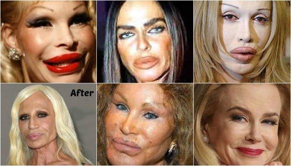Horrorosos casos de botox en famosas... ¡FAILS!