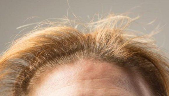 Peinados que tumban el pelo