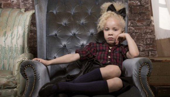 Niña albina conmociona al mundo con su belleza