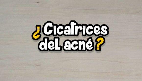 Elimina las cicatrices del acné