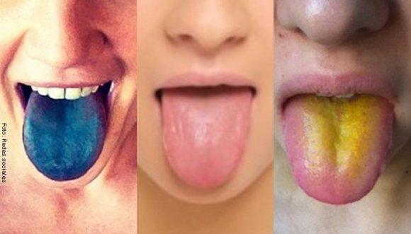 Color de lengua delata tu estado de salud