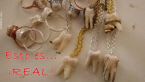¿Tuviste joyas con tus dientes? Mira las más horrorosas...