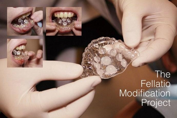 ProtesisPlacerOral int 2