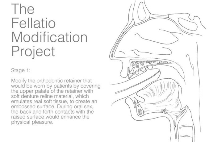 ProtesisPlacerOral int