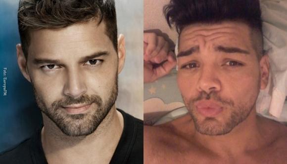 Se hizo 10 operaciones para parecerse a Ricky Martin (Fotos)