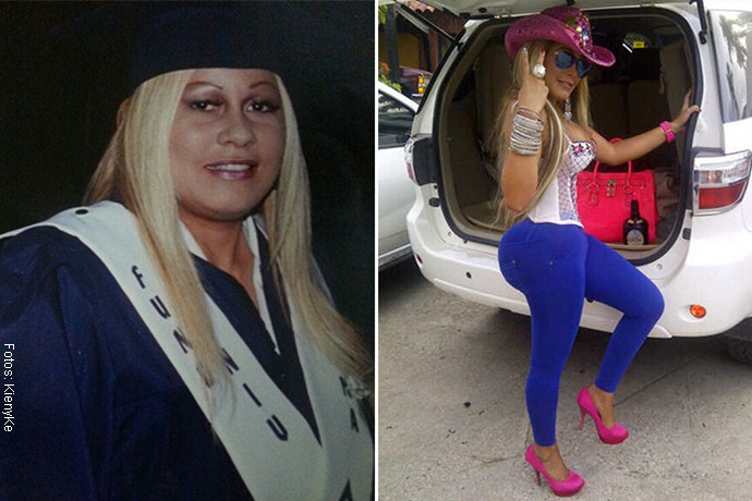 FamosasProcedimientosEsteticosYenis Cecilia Lugo