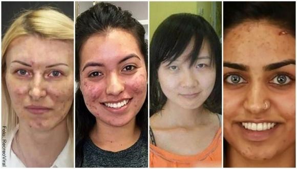 Maquillaje hizo milagros en estas mujeres