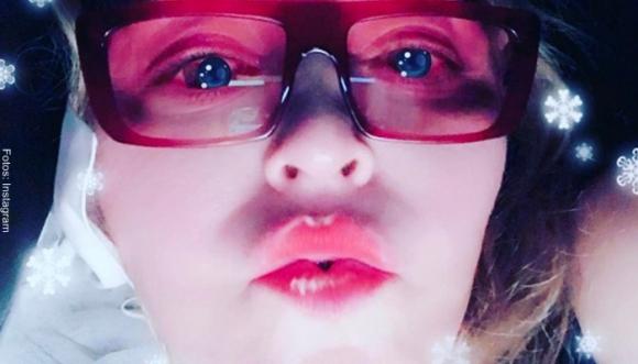 ¿Madonna se hizo algo en los labios?