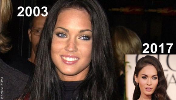 Megan Fox antes y después de operarse el rostro