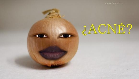 Remedio casero muy económico contra el acné
