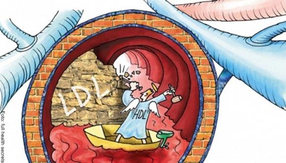 ¿Cómo bajo el colesterol malo?