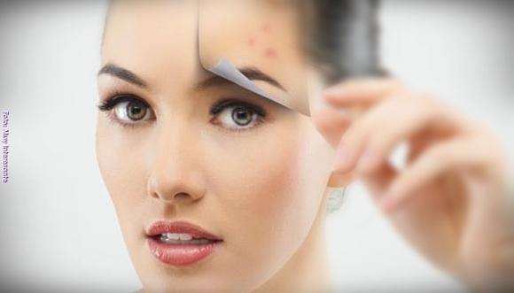La pesadilla del acné a los 30 y lo que SÍ me ha funcionado
