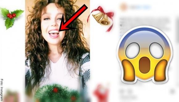 Thalía: ¿Exceso de bótox o filtro equivocado?