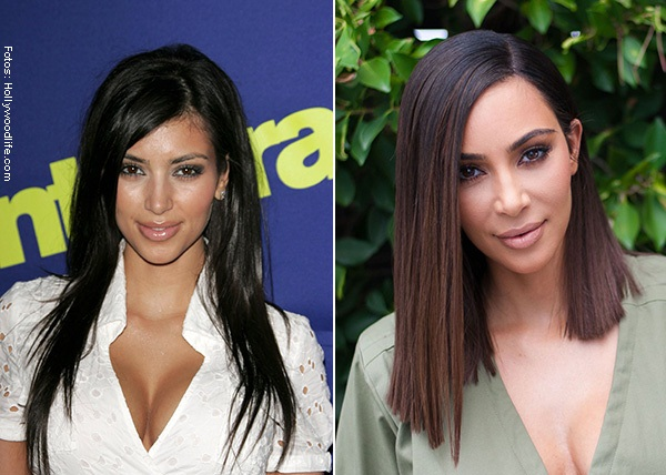 Cirugia kim kardashian face remake
