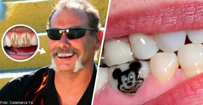 Hombre con tatuajes en los dientes