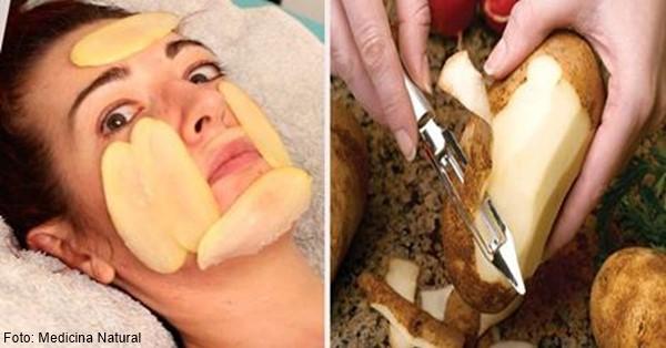 Mujer con rodajas de papa en la piel