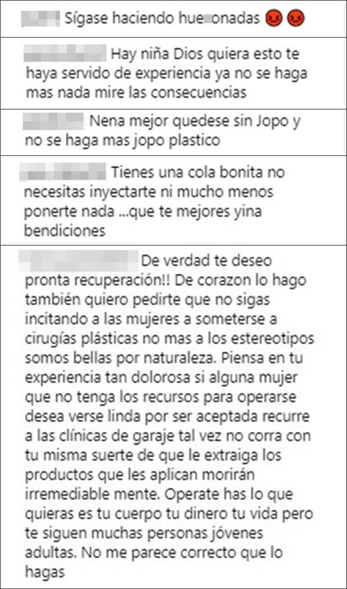 Piden a Yina Calderón que no se haga mas cirugías