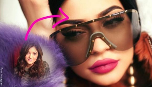 #FOTOS: Kylie Jenner y sus cirugías plásticas