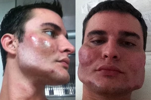 Fotos de procedimientos estéticos mal hechos