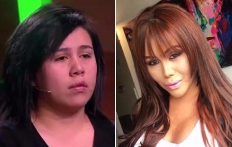 Foto antes y después de Yina Calderón