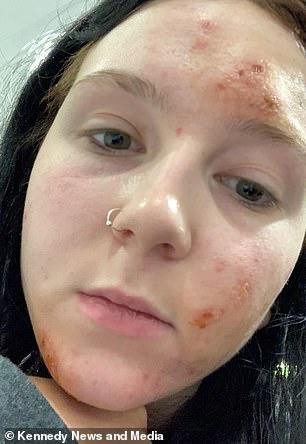 Foto de Natasha después de las quemaduras