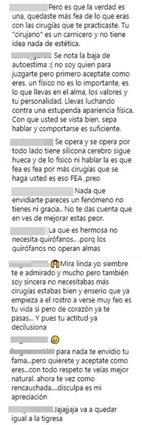 Críticas a Yina Calderón por decir que le envidian sus cirugías