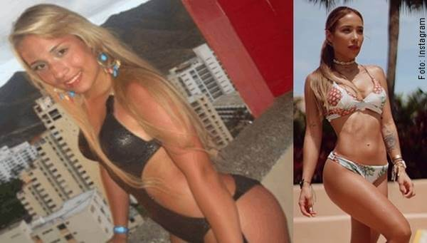 Foto antes y después de esta influencer