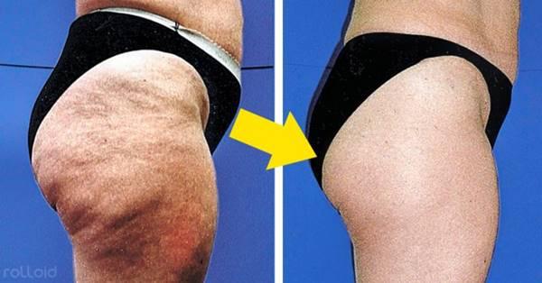 Foto de chica con celulitis antes y después