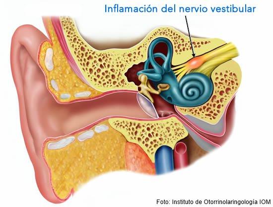 Ilustración de la neuritis vestibular de Margarita Ortega
