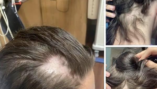 Foto de la cabeza de con pérdida capilar