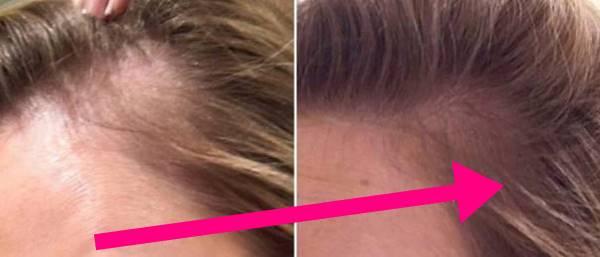 Foto de mujer antes y después pelo