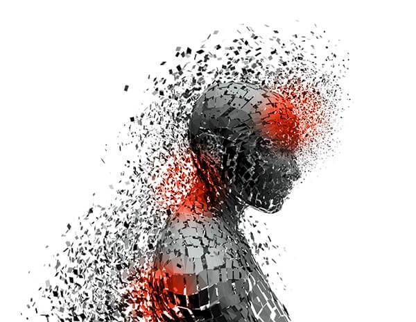 Imagen de una cabeza con dolor