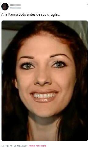 Una de las fotos filtradas de Ana Karina Soto, antes de las cirugías.