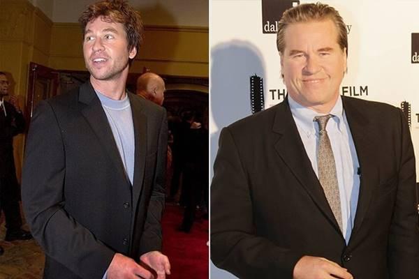 Foto antes y después de Val Kilmer