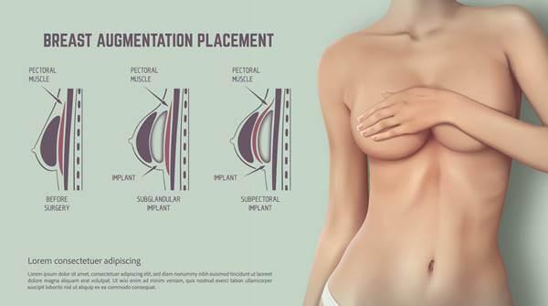 Infografía que ilustra cómo pueden ponerse los implantes mamarios