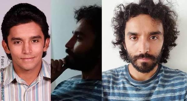 Foto antes y después del actor Javier Botero