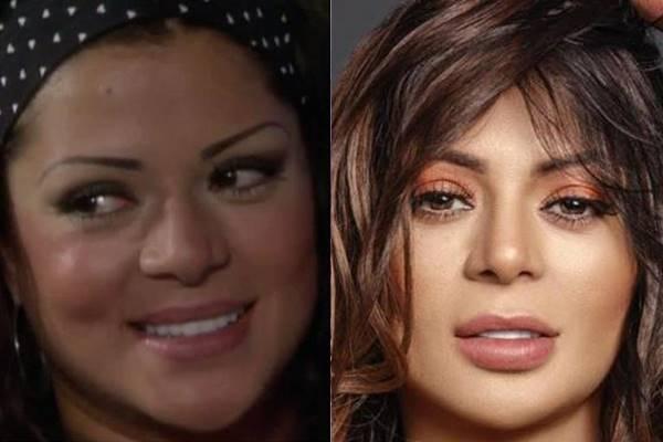 Foto antes y después de Marbelle