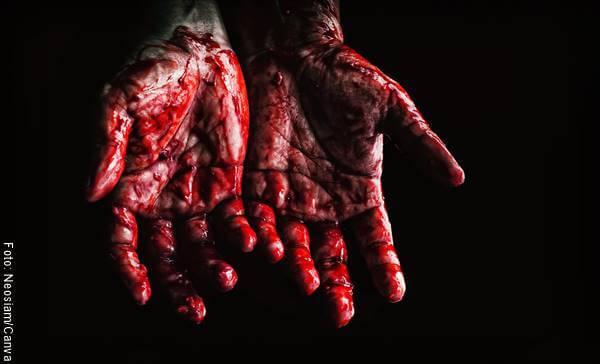 Foto de unas manos ensangrentadas para ejemplificar el significado de soñar con sangre